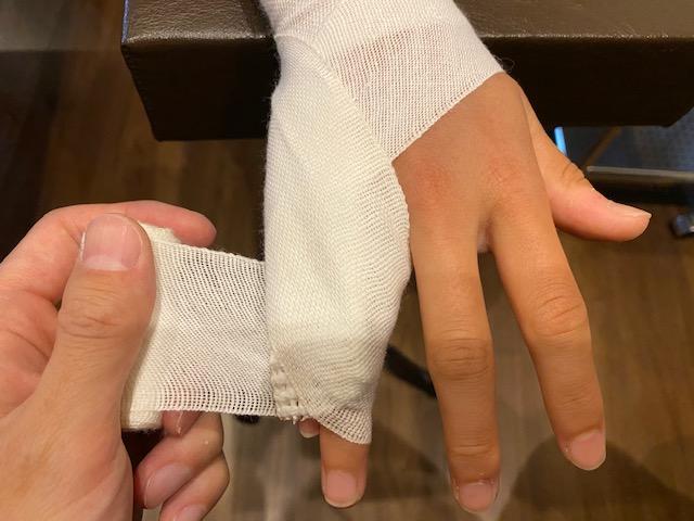 骨折 全治 指